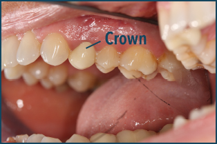Tooth Extraction Socket Bone Grafting Prince William Oms